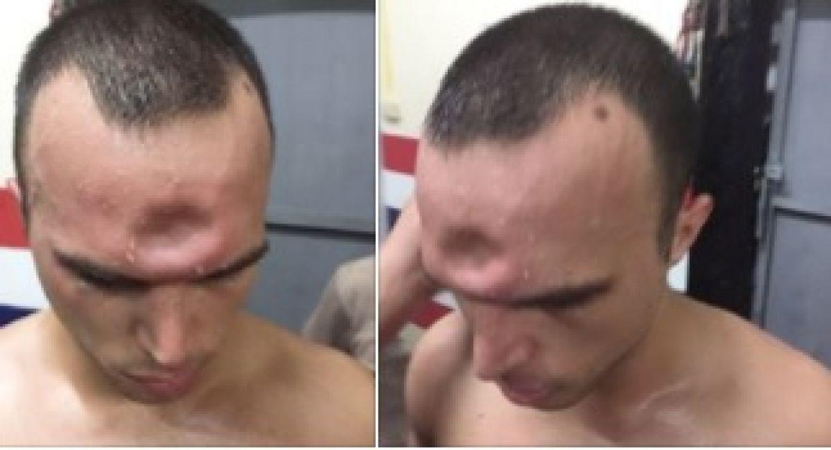 Luchador sufre 'hueco' en cráneo en combate de Muay Thai — Vídeo